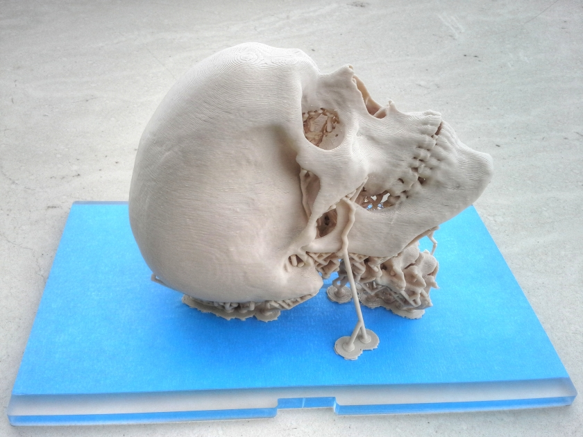 3D Printed Skull on Wikimedia.